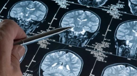 Metastasi celebrale, alle Molinette di Torino scoperto il meccanismo che innesca la malattia.