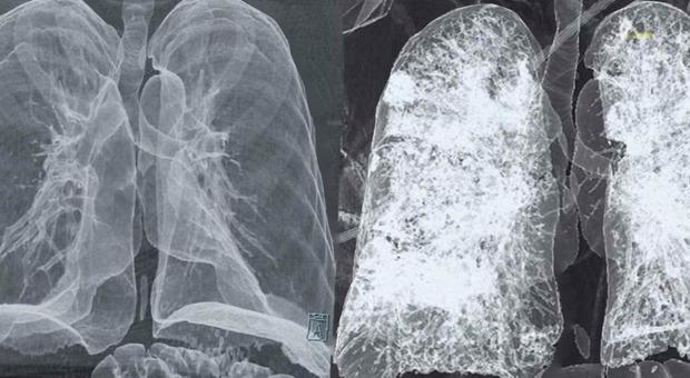 A sinistra Tac di polmoni soggetto sano a destra tac di polmoni ed paziente Covid